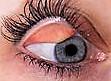 manželka-oční-víčko-sériové-snímky_csp26058650