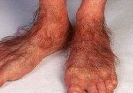 nohy.JPG